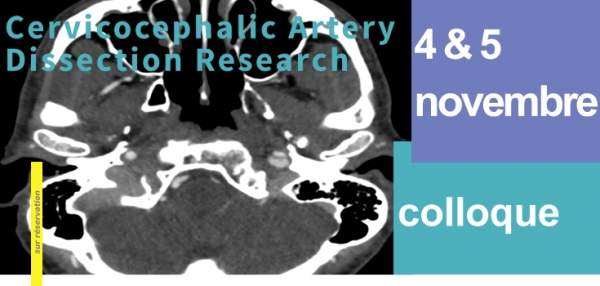 Cervicocephalic artery dissection research